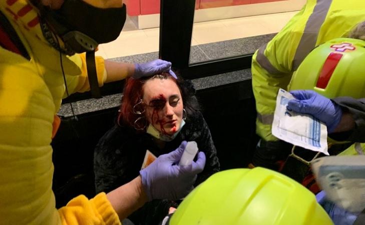 Manifestante pierde ojo durante disturbios