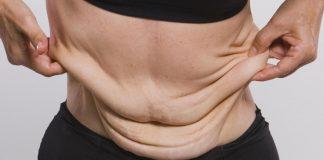 ¿Un abdomen flácido puede causar dolor de espalda?
